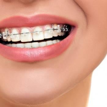 Precio ortodoncia Valencia - Clínica con años de experiencia