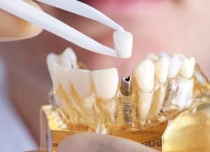 Profesionales en implantes Valencia - Profesionales y con experiencia