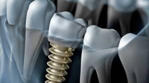 Implantes dentales Valencia - Clínica Dental Almar