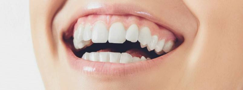 Implantes dentales Valencia - Implantología dental en Valencia
