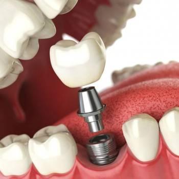 Presupuesto implantes dentales Valencia - Implantología dental en Valencia
