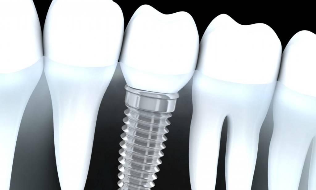 Implantes Valencia - Clínica dental en Valencia