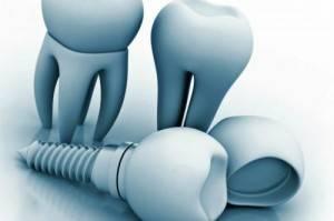 Implantología dental Valencia - Clínica con años de experiencia