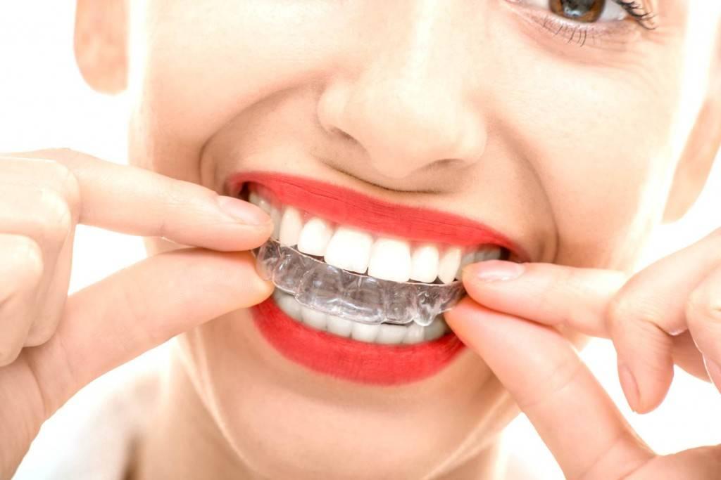 Ortodoncia invisible Valencia - Clínica dental en Valencia