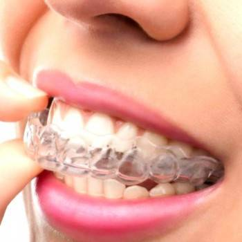 Ortodoncia invisible Valencia - Tratamientos de alta calidad