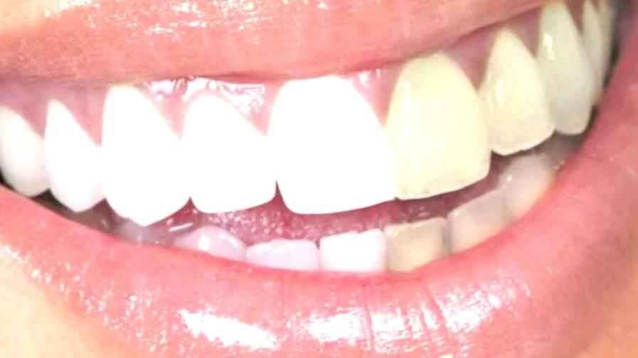 Blanqueamiento dental Valencia - Clínica con años de experiencia