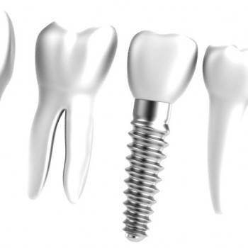 Implantes dentales Valencia - Clínica de implantología dental en Valencia
