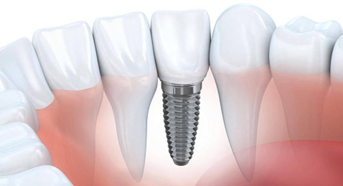Implantes y dientes en el día