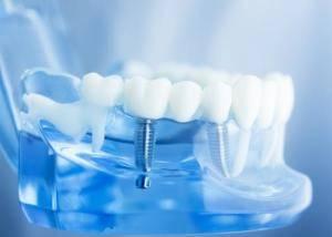 Clínica de implantes dentales Valencia