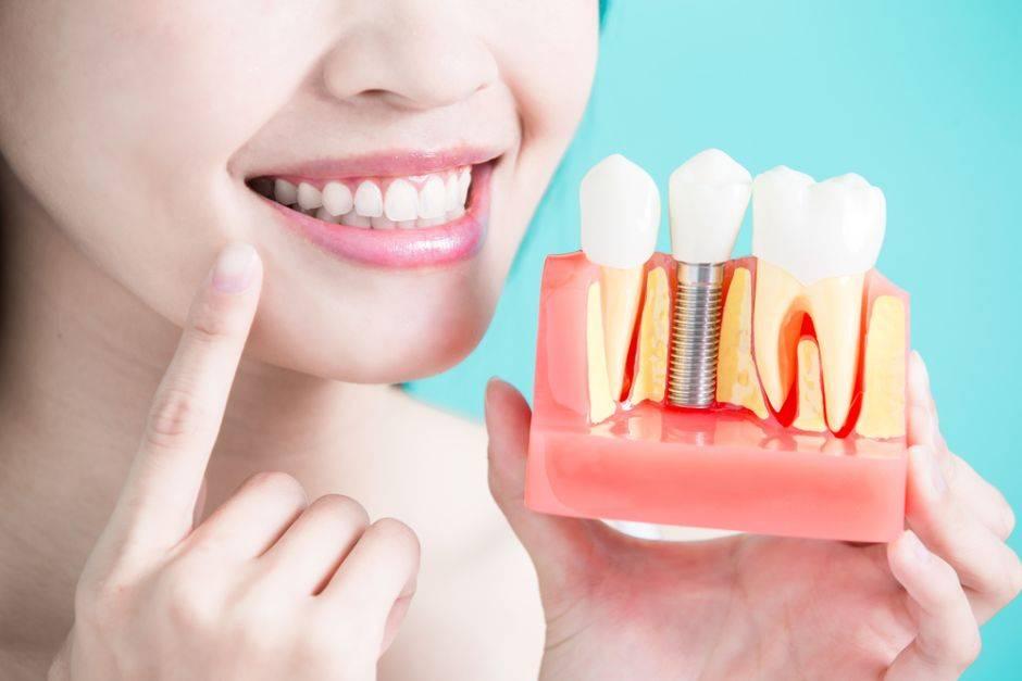Clínica de implantes dentales Valencia en el barrio de Malilla