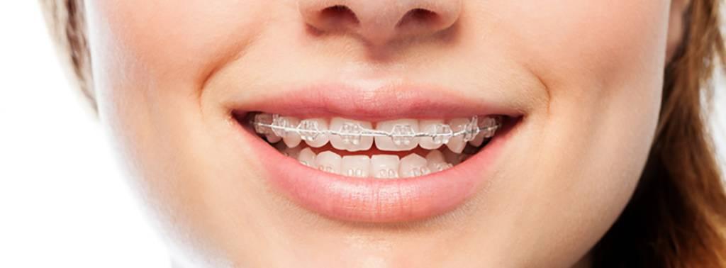 Las mejores ofertas ortodoncia Valencia
