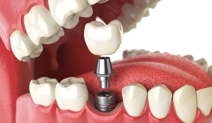 Realizamos tratamientos de implantología Valencia