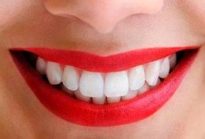 Última tecnología en blanqueamiento dental Valencia