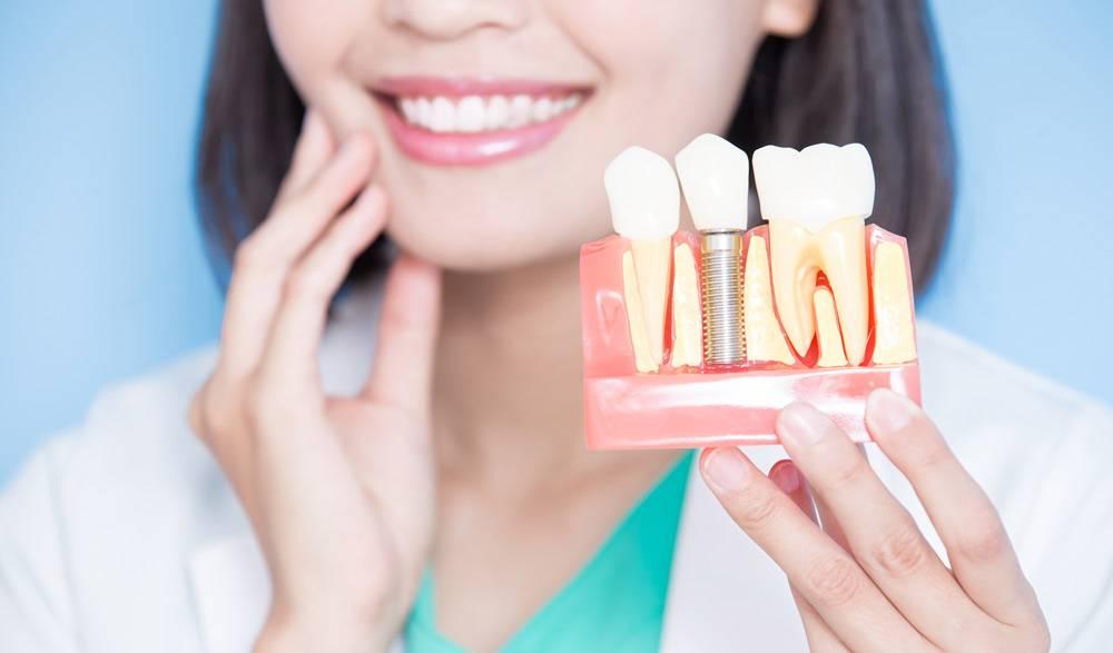 Cirugía de implante dental Valencia profesional