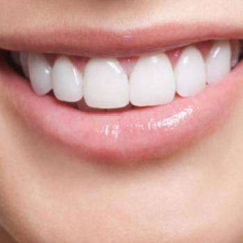 Le ofrecemos el mejor precio en implantes dentales Valencia