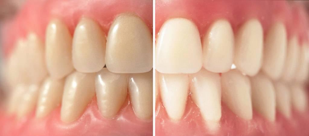Tratamiento de blanqueamiento dental Valencia profesional