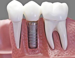 Cirugía de implante dental Valencia