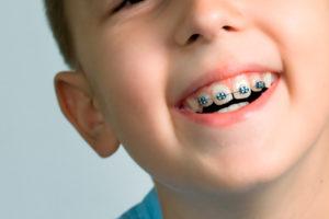 Clínica de ortodoncia infantil Valencia