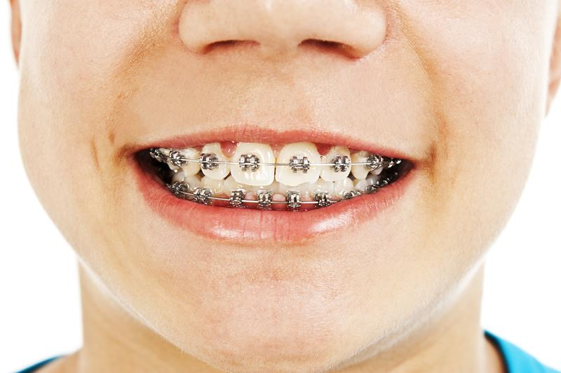 Clínica de ortodoncia infantil Valencia profesonal