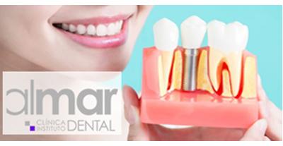 implantes dentales en Valencia - Clinica Almar