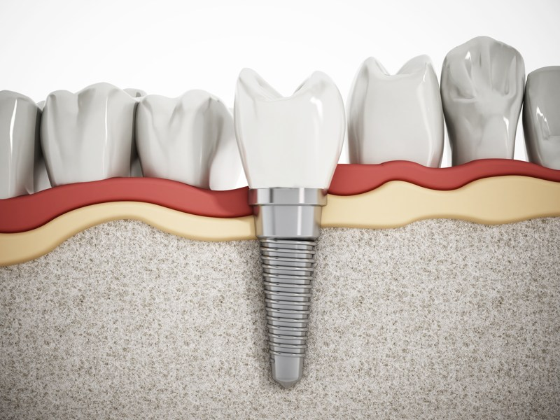Clínica de implantología dental Valencia profesional