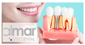 implantes clinica dental almar
