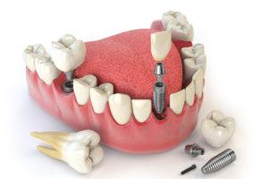 Implantes y dientes en el día Valencia