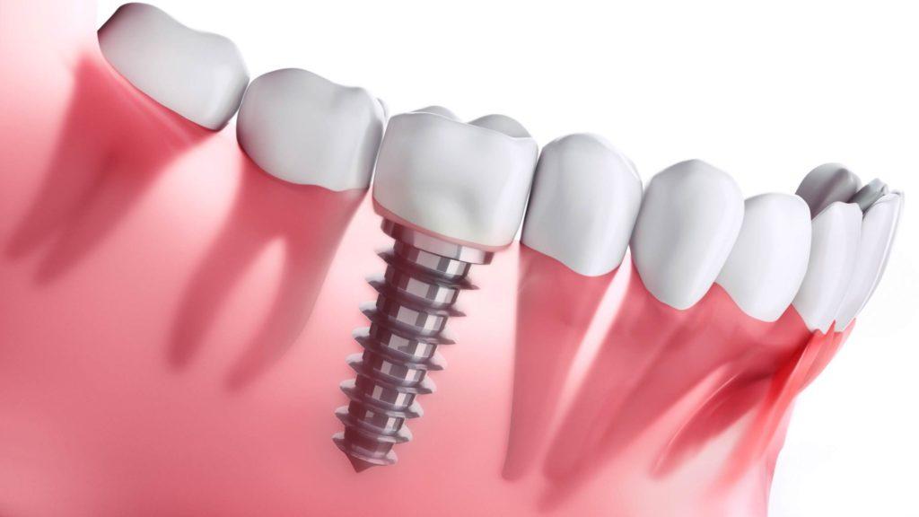 Implantes y dientes en el día Valencia de calidad
